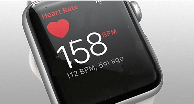 apple watch opinion